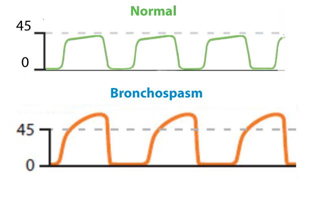 Bronchospasm
